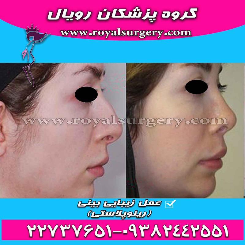 جراحی بینی رویال